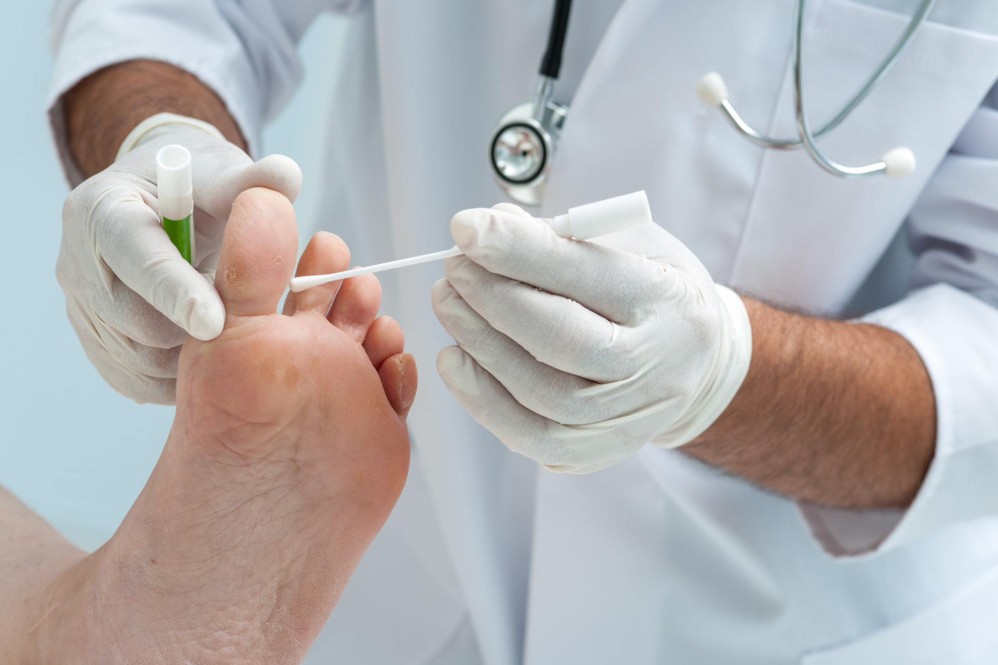 The Importance of Wound Care Therapy for Diabetic Feet